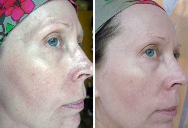 Лицо до и после использования маски