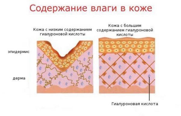 Схема: содержание влаги в коже