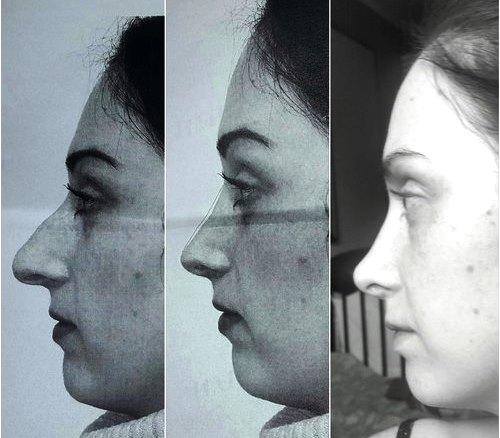 Три изображения одной и той же женщины с разной формой носа