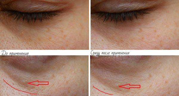 Веки до и после применения маски