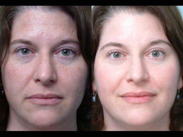 Женщина до и после химического пилинга