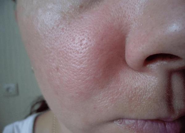 Отёк щеки после инъекции препаратом Гиалуформ