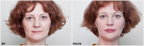 Результат омолаживающей коррекции лица с помощью филлеров
