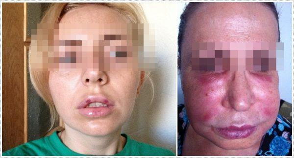 Пример побочного явления и осложнения с отёком и гематомами
