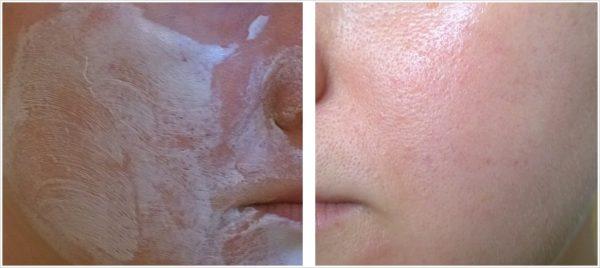 Лицо во время и после нанесения маски Dr.Sea с гранатом и имбирём