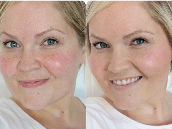 До и после использования белковой маски