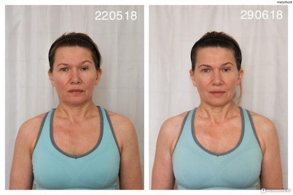 До и после упражнений Ревитоника, результат Марии, 57 лет