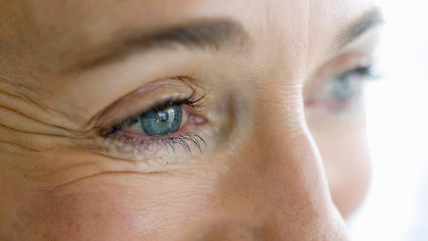 гусиные лапки фото на лице гармоничное сочетание можно