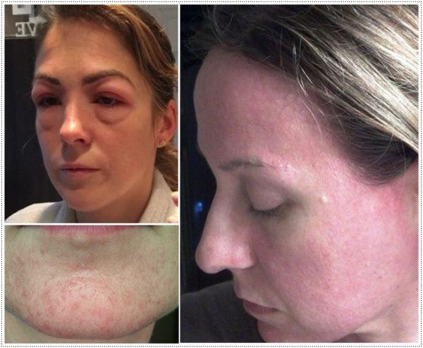 Примеры аллергии на лице