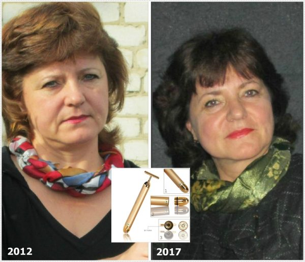Эффект использования массажёра Energy Beauty Bar