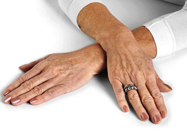 Пигментация рук