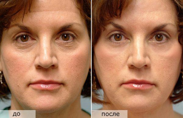 Фракционное лазерное омоложение лица: до и после