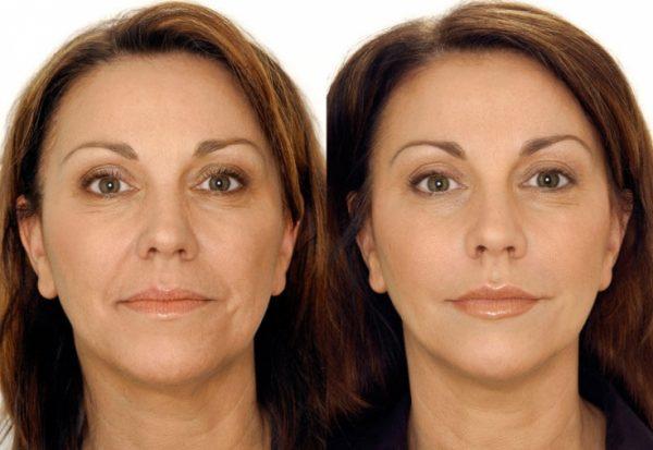 До и после биоревитализации в зрелом возрасте