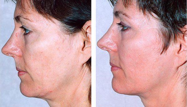 Термаж лица: до и после