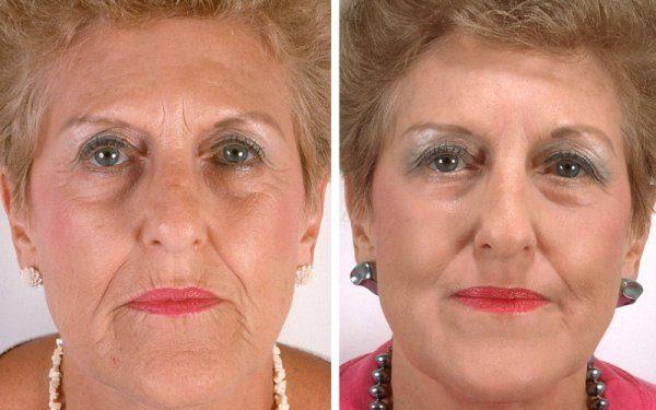До и после нитевого лифтинга лица в зрелом возрасте