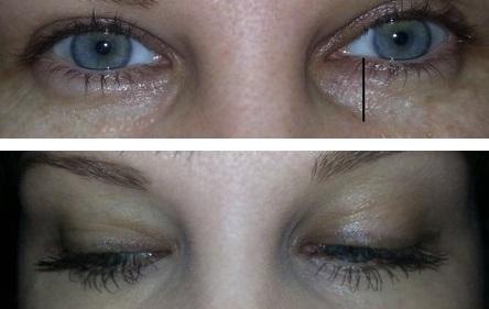 Результат устранения синяков под глазами от пользователя Маська91