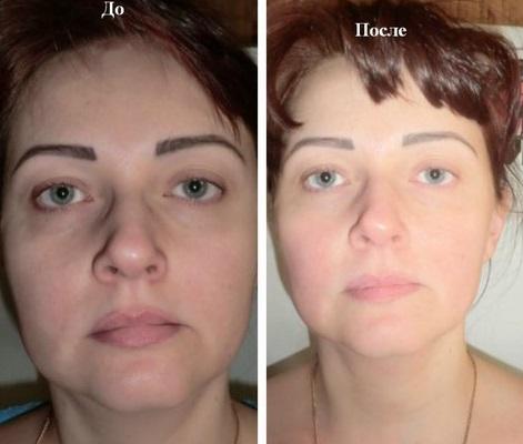 До и после курса процедур термажа