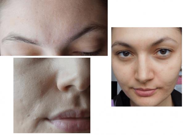 Состояние кожи пользователя Леся Фокс до и после использования концентрата Vichy: коллаж