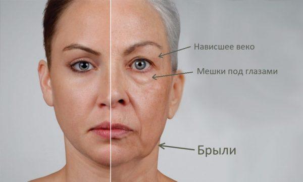 Деформация овала лица: схема