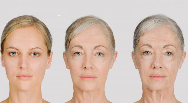 Изменения лица при мышечном типе старения