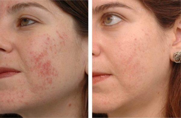 Действие масла чайного дерева на кожу (лицо до и после использования)