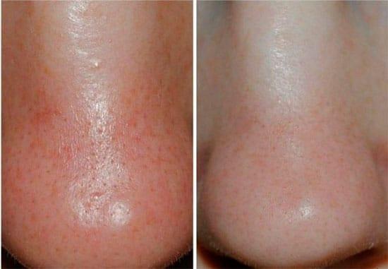 Кожа на носу до и после применения уходового средства